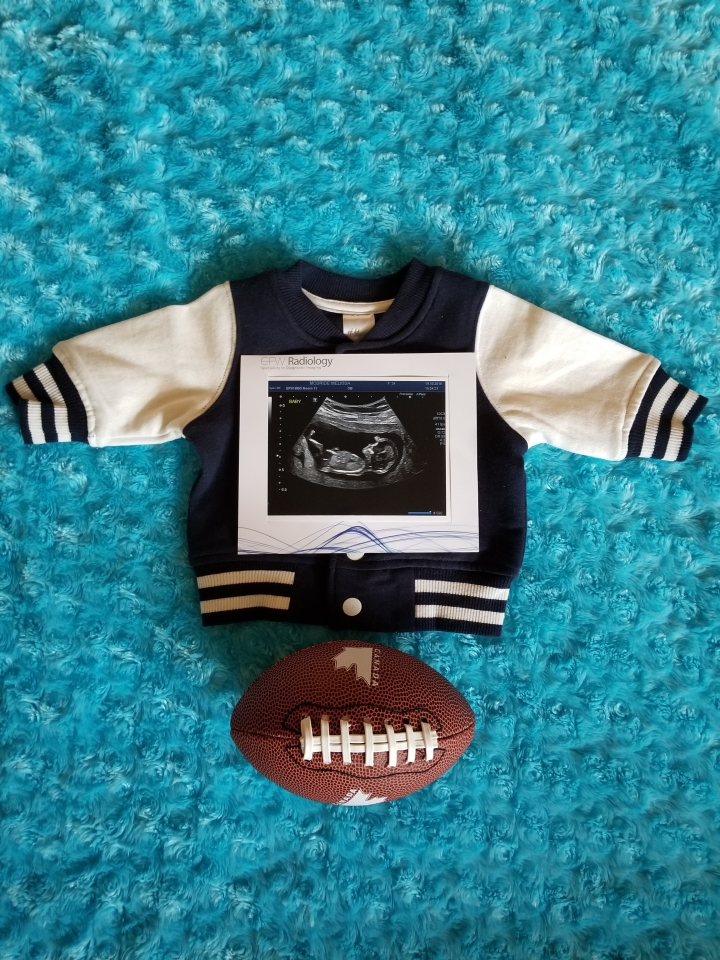 Photo of our gender announcement for Timothy. A baby blue background, a newborn size varsity jacket with an ultrasound picture on top with a baby sized football laying underneath the jacket.